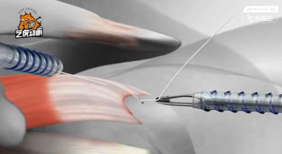 医学三维动画演示人体组织缝合过程