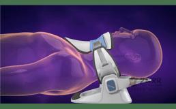 3D视频演示补牙过程动画